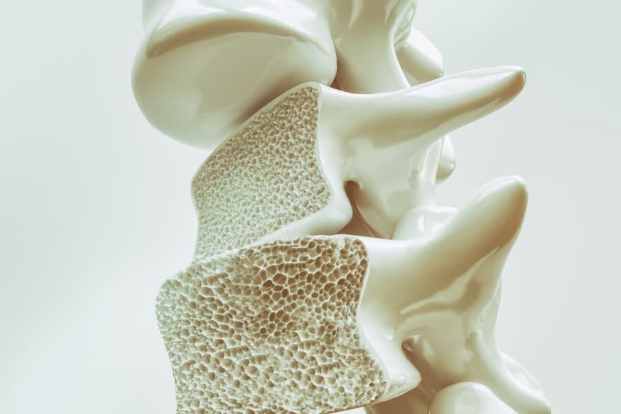 Porous Bones In Spine From Osteoporosis